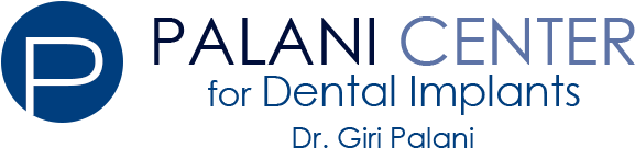 Palani Center for Dental Implants